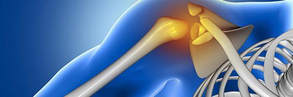 Chirurgia mininvasiva della spalla
