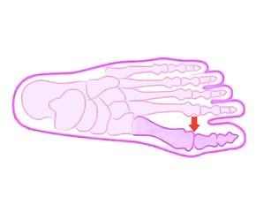 6 motivi per ricorrere alla correzione percutanea mininvasiva dell'alluce valgo